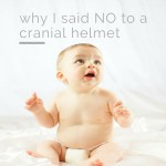 Saying NO to Cranial Helmets: You have Options